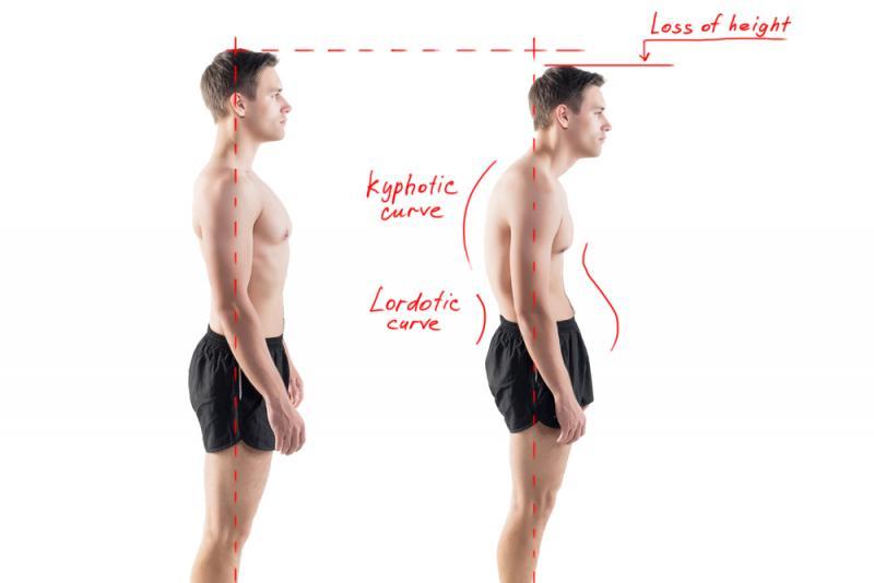 Improved Posture