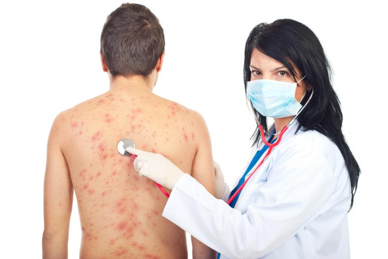 Previous Case of Chicken Pox