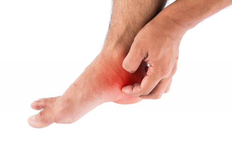 Signs Of Athletes Foot 40