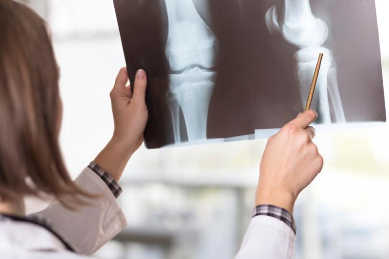 Bone Issues